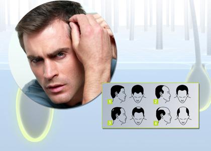 .могут помочь с выпадением волос при заболеваниях щитовидной