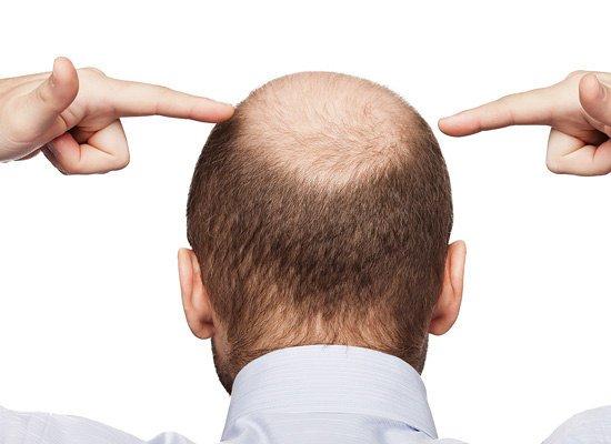 Андрогенетическая алопеция, выпадение волос, облысение, сильное выпадение