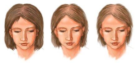 Диффузная алопеция, выпадение волос, облысение, сильное выпадение волос