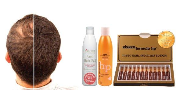 Волос спрей для быстрого роста волос в домашних условиях результате этого