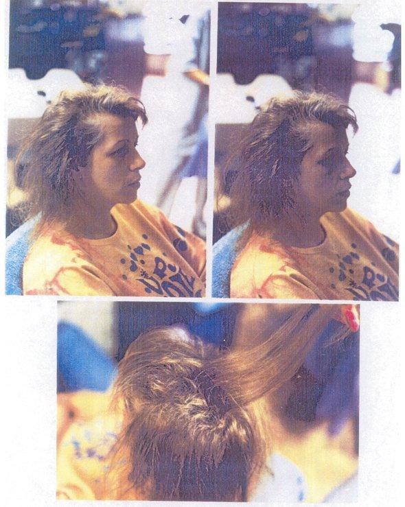 выпадение волос, плацент формула, облысение, алопеция