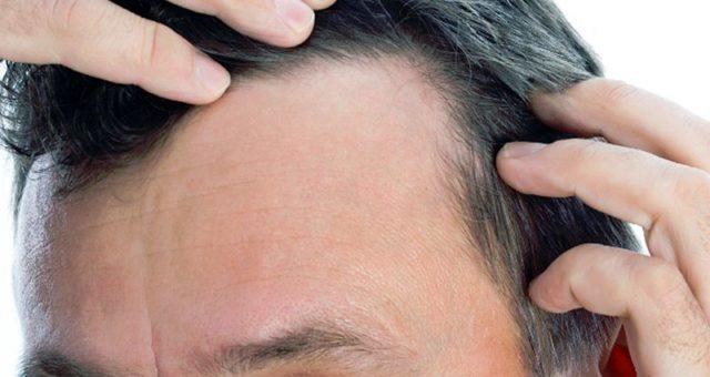 выпадение волос у мужчин